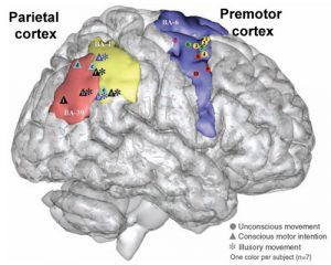 For Free Will, Aren't the Brain and Brain Tumor Identical?